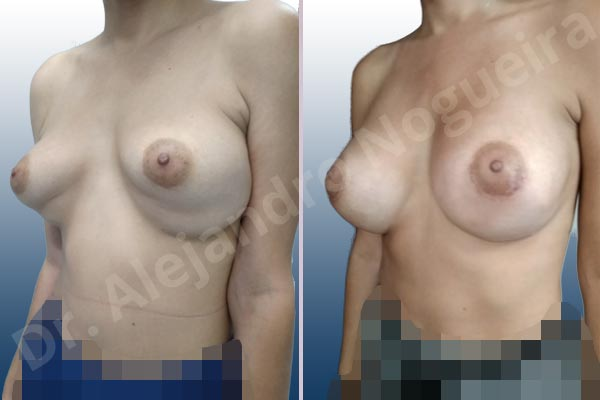 Before & After Case BZWL7IVU