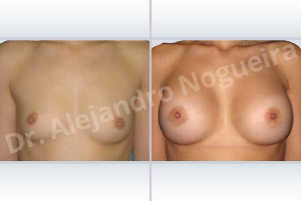Asymmetric breasts,Cross eyed breasts,Skinny breasts,Small breasts,Lower hemi periareolar incision,Round shape,Subfascial pocket plane - photo 1