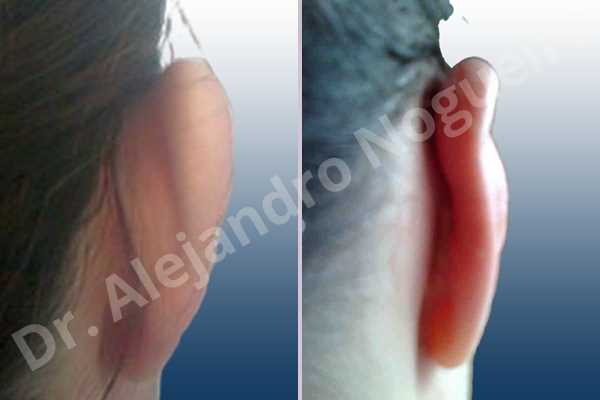 Prominent ears,Mustardé antihelical suturing - photo 4
