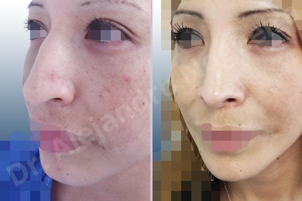 Before & After Case C78RJBM2