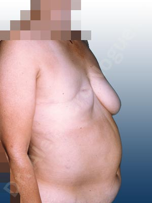 Asymmetric breasts,Severely saggy droopy breasts,Breast loss mastectomy,Free nipple areola complex graft,Lollipop incision,Nipple areola complex reconstruction,Superior pedicle,Unilateral TRAM flap breast reconstruction