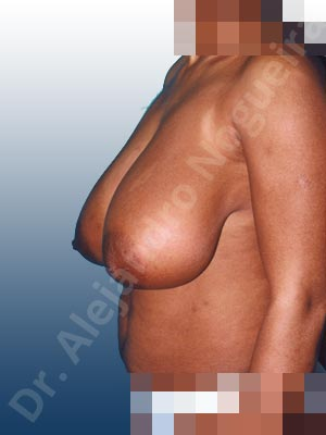 Breast tissue bottoming out,Extremely large breasts,Extremely saggy droopy breasts,Large areolas,Pigmented scars,Anchor incision,Areola reduction,Double vertical pedicle