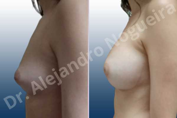 Asymmetric breasts,Cleft nipples,Empty breasts,Inverted nipples,Narrow breasts,Small breasts,Anatomical shape,Circumareolar incision,Extra large size,Subfascial pocket plane - photo 2