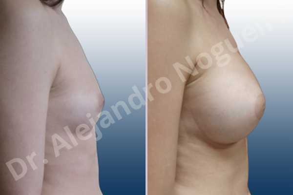 Asymmetric breasts,Cleft nipples,Empty breasts,Inverted nipples,Narrow breasts,Small breasts,Anatomical shape,Circumareolar incision,Extra large size,Subfascial pocket plane - photo 4