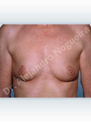 Empty breasts,Slightly saggy droopy breasts,Small breasts,Anatomical shape,Lower hemi periareolar incision,Subfascial pocket plane