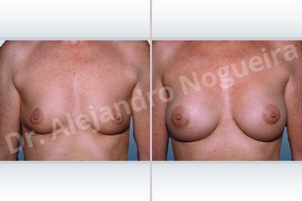Before & After Case CER8FGXG