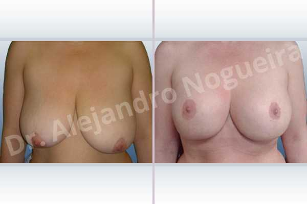 Asymmetric breasts,Empty breasts,Extremely saggy droopy breasts,Moderately large breasts,Pendulous breasts,Severely saggy droopy breasts,Wide breasts,Anatomical shape,Anchor incision,Double vertical pedicle,Extra large size,Subfascial pocket plane - photo 1