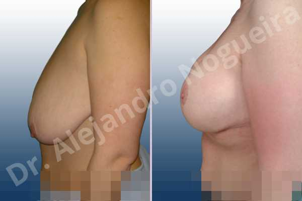 Asymmetric breasts,Empty breasts,Extremely saggy droopy breasts,Moderately large breasts,Pendulous breasts,Severely saggy droopy breasts,Wide breasts,Anatomical shape,Anchor incision,Double vertical pedicle,Extra large size,Subfascial pocket plane - photo 2