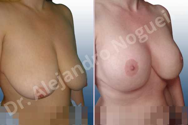 Asymmetric breasts,Empty breasts,Extremely saggy droopy breasts,Moderately large breasts,Pendulous breasts,Severely saggy droopy breasts,Wide breasts,Anatomical shape,Anchor incision,Double vertical pedicle,Extra large size,Subfascial pocket plane - photo 5