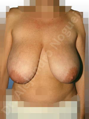 Breast tissue bottoming out,Extremely saggy droopy breasts,Large areolas,Moderately large breasts,Pendulous breasts,Tuberous breasts,Anchor incision,Areola reduction,Double vertical pedicle