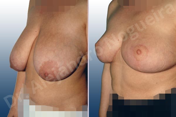 Before & After Case CIFM4KRW