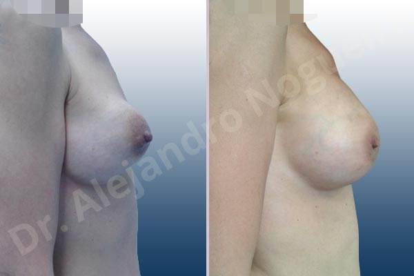 Before & After Case CLP3NXQC