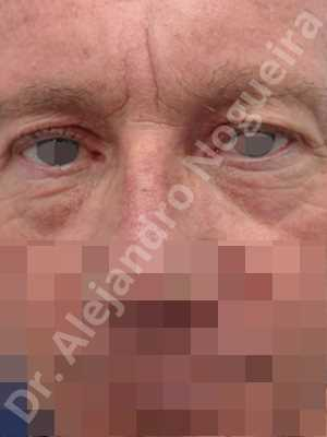 Baggy lower eyelids,Saggy upper eyelids,Upper eyelids ptosis,Lower eyelid fat bags resection,Transconjunctival approach incision,Upper eyelid skin and muscle resection