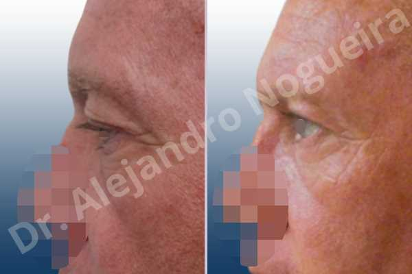 Baggy lower eyelids,Saggy upper eyelids,Upper eyelids ptosis,Lower eyelid fat bags resection,Transconjunctival approach incision,Upper eyelid skin and muscle resection - photo 2