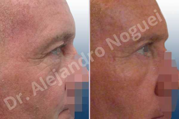 Before & After Case CMXZKU6V
