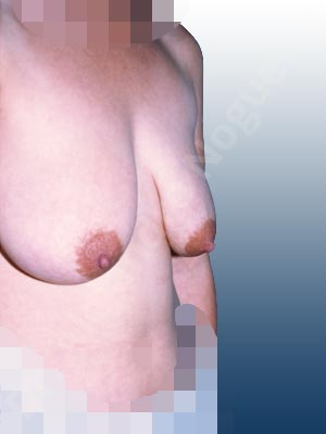 Severely saggy droopy breasts,Tuberous breasts,Lollipop incision,Superior pedicle
