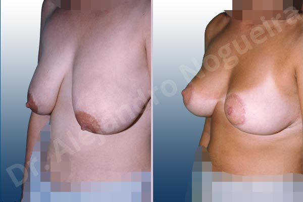 Severely saggy droopy breasts,Tuberous breasts,Lollipop incision,Superior pedicle - photo 2