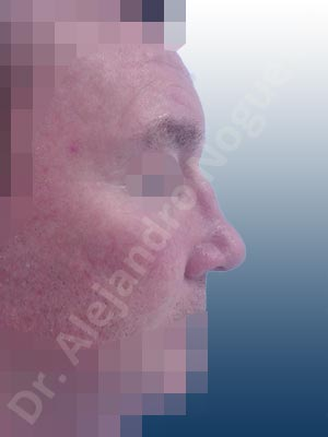 Broad dorsum,Bulbous tip,Dorsum hump,Dorsum ridges,High dorsum,Irregular dorsum,Large alar cartilages,Nasal fibrosis,Poorly defined tip,Poorly supported tip,Posttraumatic nose,Rounded tip,Saddle nose deformity,Short septum,Sunken columella,Sunken supratip,Thick skin nose,Underprojected tip,Columella strut graft,Dorsum hump resection,Dorsum regularization,Ear cartilage graft harvesting,Intercrural columella plasty sutures,Lateral cruras cephalic resection,Nasal bones osteotomies,Onlay dorsum graft,Onlay supratip graft,Open approach incision,Septum caudal extension graft,Tip defatting