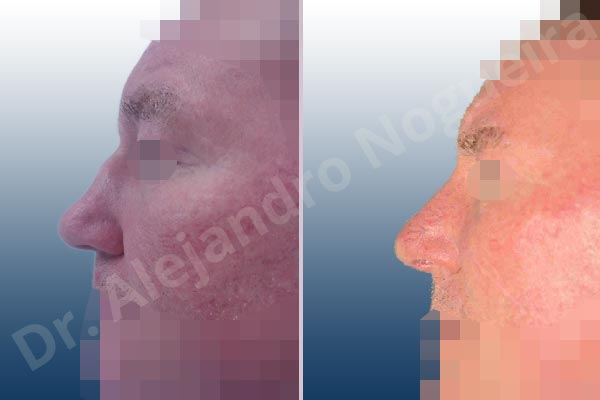 Before & After Case DBCDNYVU