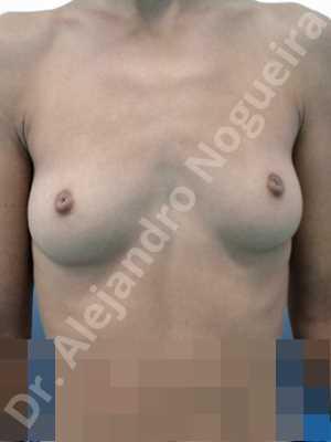 Cleft nipples,Cross eyed breasts implants,Empty breasts,Inverted nipples,Lateral breasts,Narrow breasts,Skinny breasts,Small breasts,Sunken chest,Anatomical shape,Extra large size,Inframammary incision,Subfascial pocket plane