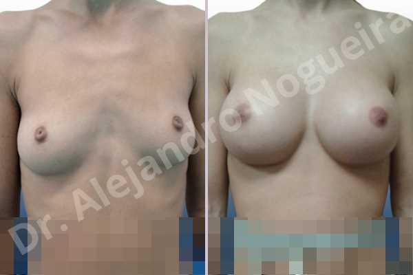 Cleft nipples,Cross eyed breasts implants,Empty breasts,Inverted nipples,Lateral breasts,Narrow breasts,Skinny breasts,Small breasts,Sunken chest,Anatomical shape,Extra large size,Inframammary incision,Subfascial pocket plane - photo 1