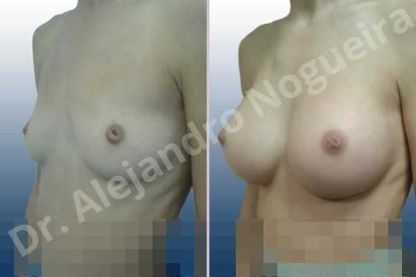Before & After Case DJAGBXW2
