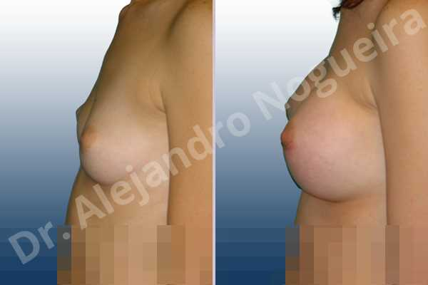Asymmetric breasts,Cross eyed breasts,Lateral breasts,Narrow breasts,Skinny breasts,Sunken chest,Too far apart wide cleavage breasts,Lower hemi periareolar incision,Round shape,Subfascial pocket plane - photo 2