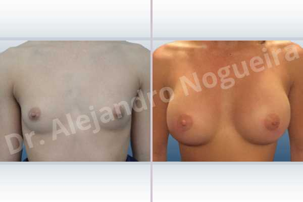 Empty breasts,Lateral breasts,Narrow breasts,Skinny breasts,Small breasts,Too far apart wide cleavage breasts,Anatomical shape,Circumareolar incision,Subfascial pocket plane - photo 1