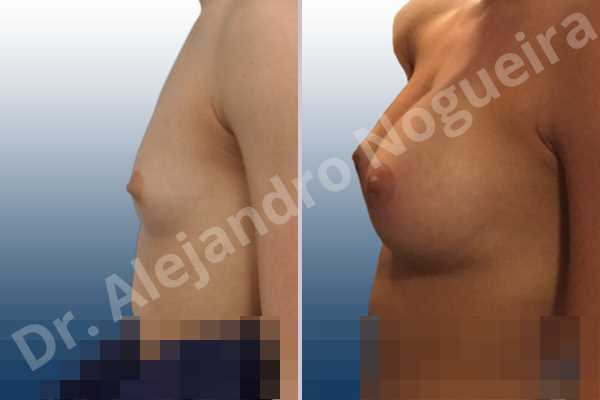 Empty breasts,Lateral breasts,Narrow breasts,Skinny breasts,Small breasts,Too far apart wide cleavage breasts,Anatomical shape,Circumareolar incision,Subfascial pocket plane - photo 2