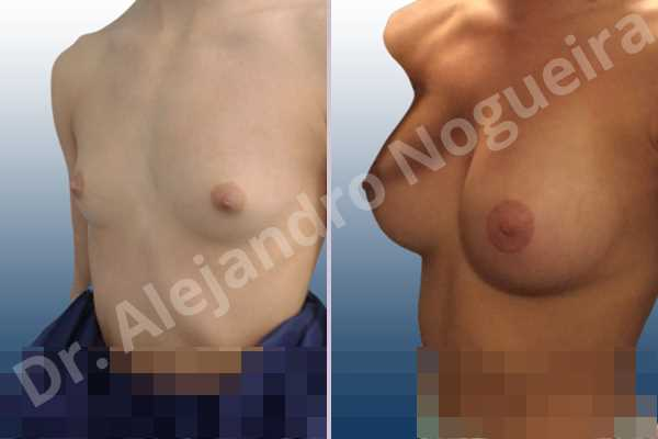 Empty breasts,Lateral breasts,Narrow breasts,Skinny breasts,Small breasts,Too far apart wide cleavage breasts,Anatomical shape,Circumareolar incision,Subfascial pocket plane - photo 3