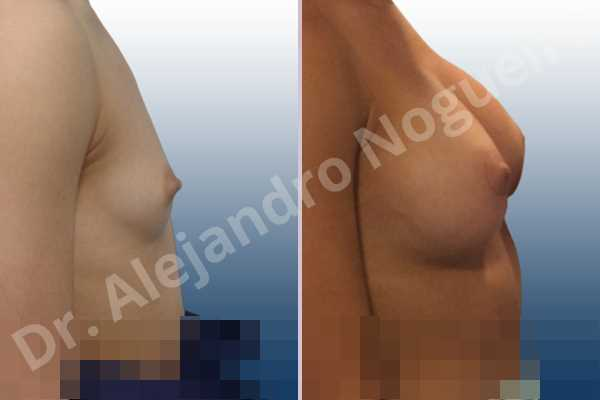 Empty breasts,Lateral breasts,Narrow breasts,Skinny breasts,Small breasts,Too far apart wide cleavage breasts,Anatomical shape,Circumareolar incision,Subfascial pocket plane - photo 4