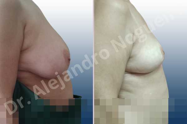 Asymmetric breasts,Large areolas,Moderately large breasts,Pendulous breasts,Pigeon chest,Severely saggy droopy breasts,Wide breasts,Anchor incision,Double vertical pedicle,Areola reduction - photo 4