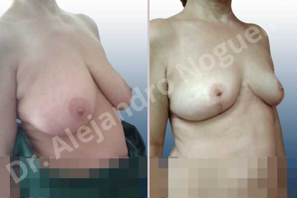 Asymmetric breasts,Large areolas,Moderately large breasts,Pendulous breasts,Pigeon chest,Severely saggy droopy breasts,Wide breasts,Anchor incision,Double vertical pedicle,Areola reduction - photo 5