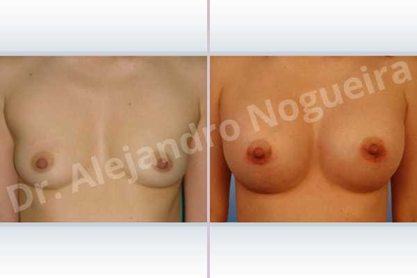 Narrow breasts,Skinny breasts,Anatomical shape,Lower hemi periareolar incision,Subfascial pocket plane - photo 1