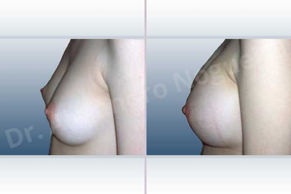 Asymmetric breasts,Cross eyed breasts,Lateral breasts,Narrow breasts,Skinny breasts,Small breasts,Too far apart wide cleavage breasts,Anatomical shape,Lower hemi periareolar incision,Subfascial pocket plane - photo 2