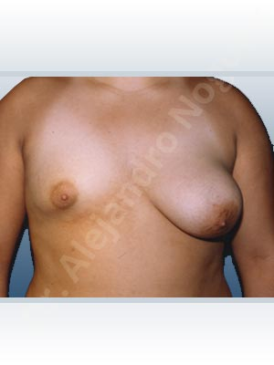Asymmetric breasts,Empty breasts,Large areolas,Lateral breasts,Pendulous breasts,Severely saggy droopy breasts,Small breasts,Too far apart wide cleavage breasts,Tuberous breasts,Areola reduction,Dual plane pocket,Lollipop incision,Lower hemi periareolar incision,Round shape,Superior pedicle,Tuberous mammoplasty