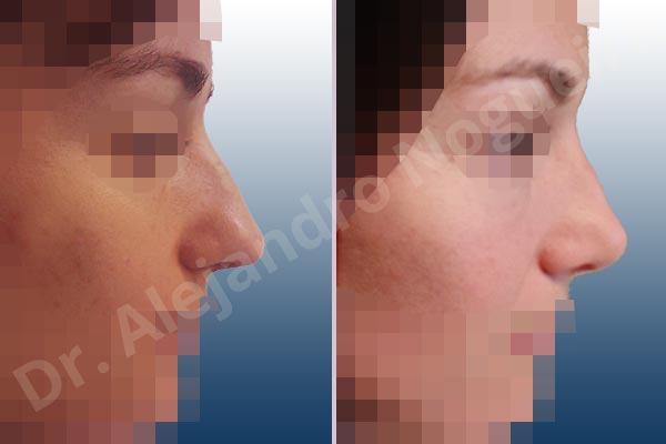 Alar flaring,Asymmetric tip,Bifid columella,Bifid tip,Boxy tip,Broad nose,Bulbous tip,Dorsum hump,Dorsum ridges,Droopy tip,Dynamic alar flaring,Large alar cartilages,Large nose,Mediterranean nose,Narrow dorsum,Overprojected tip,Plunging tip deformity,Poorly defined tip,Poorly supported tip,Thin skin nose,Columella strut graft,Intercrural columella plasty sutures,Interdomal tip plasty sutures,Lateral cruras cephalic resection,Lateral cruras repositioning,Lateral cruras shortening resection,Medial cruras shortening resection,Open approach incision,Tip defatting,Transdomal tip plasty scoring,Transdomal tip plasty sutures - photo 5