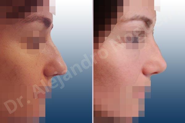 Before & After Case EHJGCAKM