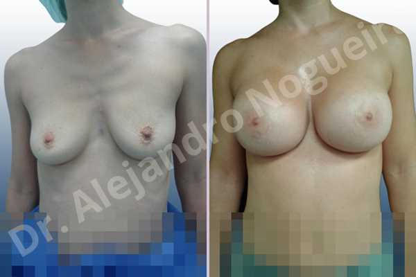 Before & After Case EJBHC9YF