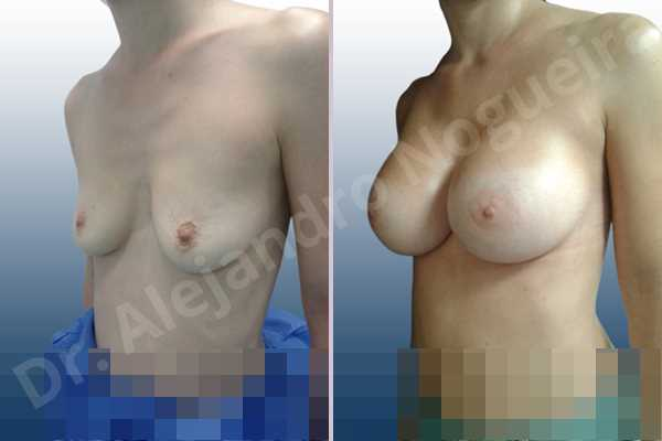 Empty breasts,Mildly saggy droopy breasts,Narrow breasts,Pendulous breasts,Skinny breasts,Sunken chest,Small breasts,Anatomical shape,Extra large size,Lower hemi periareolar incision,Subfascial pocket plane - photo 3