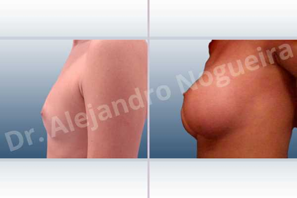 Asymmetric breasts,Empty breasts,Lateral breasts,Narrow breasts,Skinny breasts,Small breasts,Too far apart wide cleavage breasts,Anatomical shape,Inframammary incision,Subfascial pocket plane - photo 2
