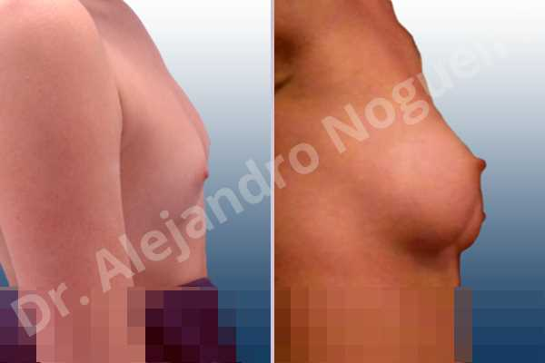 Asymmetric breasts,Empty breasts,Lateral breasts,Narrow breasts,Skinny breasts,Small breasts,Too far apart wide cleavage breasts,Anatomical shape,Inframammary incision,Subfascial pocket plane - photo 4