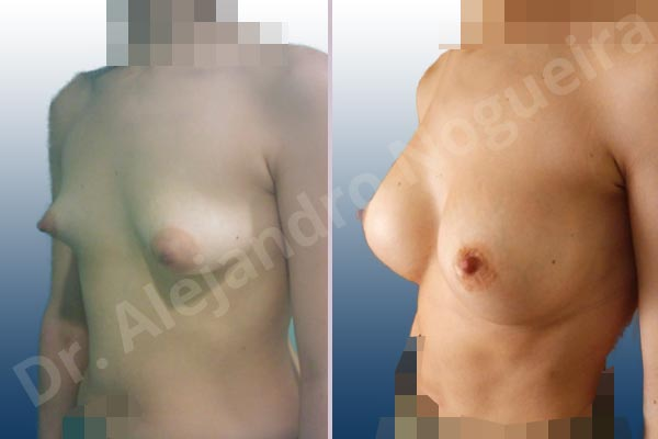 Before & After Case EXNFEMB7