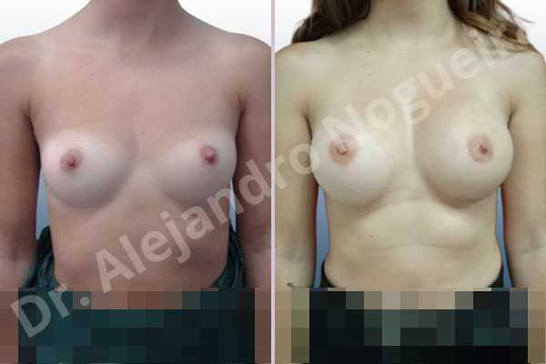 Asymmetric breasts,Empty breasts,Small breasts,Anatomical shape,Inframammary incision,Subfascial pocket plane - photo 1