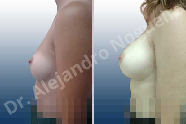 Asymmetric breasts,Empty breasts,Small breasts,Anatomical shape,Inframammary incision,Subfascial pocket plane - photo 2