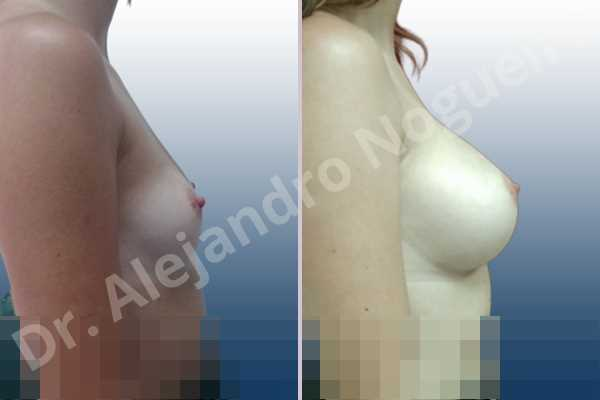 Asymmetric breasts,Empty breasts,Small breasts,Anatomical shape,Inframammary incision,Subfascial pocket plane - photo 4