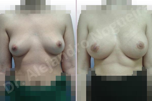 Before & After Case EZGN8VZJ