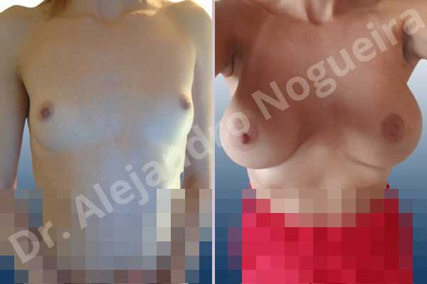 Asymmetric breasts,Cross eyed breasts,Empty breasts,Lateral breasts,Narrow breasts,Pigeon chest,Skinny breasts,Small breasts,Too far apart wide cleavage breasts,Anatomical shape,Extra large size,Inframammary incision,Subfascial pocket plane - photo 1