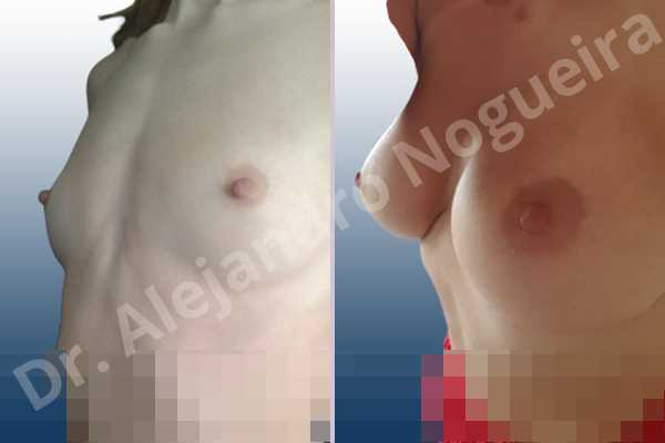 Asymmetric breasts,Cross eyed breasts,Empty breasts,Lateral breasts,Narrow breasts,Pigeon chest,Skinny breasts,Small breasts,Too far apart wide cleavage breasts,Anatomical shape,Extra large size,Inframammary incision,Subfascial pocket plane - photo 3