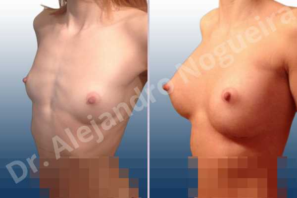 Asymmetric breasts,Cross eyed breasts,Empty breasts,Lateral breasts,Narrow breasts,Pigeon chest,Skinny breasts,Small breasts,Too far apart wide cleavage breasts,Anatomical shape,Extra large size,Inframammary incision,Subfascial pocket plane - photo 4